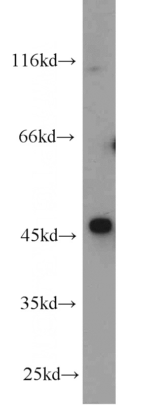 Jurkat cells were subjected to SDS PAGE followed by western blot with Catalog No:113530(OXTR antibody) at dilution of 1:1000