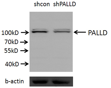 A549 cells (shcontrol and shRNA of PALLD) were subjected to SDS PAGE followed by western blot with Catalog No:113503 (PALLD antibody) at dilution of 1:2000. (Data provided by Angran Biotech (www.miRNAlab.com)).
