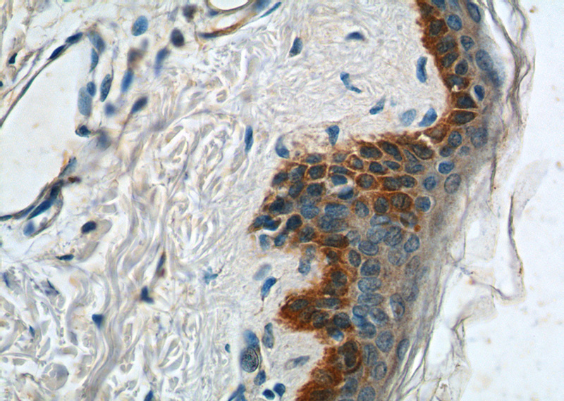 Immunohistochemistry of paraffin-embedded human skin tissue slide using Catalog No:109793(KRT14 Antibody) at dilution of 1:200 (under 40x lens).