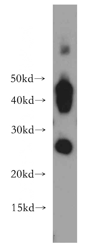 human skeletal muscle tissue were subjected to SDS PAGE followed by western blot with Catalog No:108045(AQP1 antibody) at dilution of 1:1000