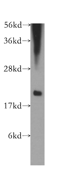 HL-60 cells were subjected to SDS PAGE followed by western blot with Catalog No:109716(CST7 antibody) at dilution of 1:500