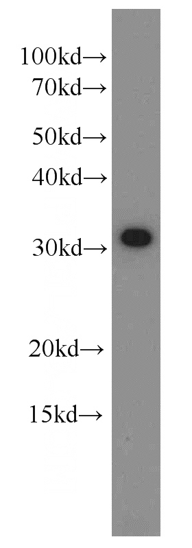 MCF7 cells were subjected to SDS PAGE followed by western blot with Catalog No:109318(CIP29 antibody) at dilution of 1:1500