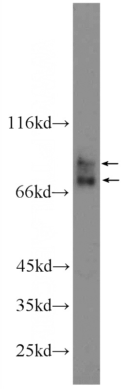 HepG2 cells were subjected to SDS PAGE followed by western blot with Catalog No:107697(ACSL4 Antibody) at dilution of 1:1000
