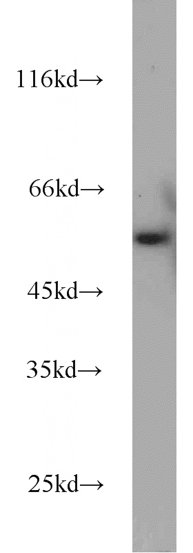 Jurkat cells were subjected to SDS PAGE followed by western blot with Catalog No:116974(WTAP antibody) at dilution of 1:1000