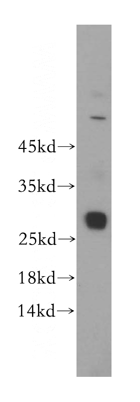HepG2 cells were subjected to SDS PAGE followed by western blot with Catalog No:111194(GSTT2B antibody) at dilution of 1:500