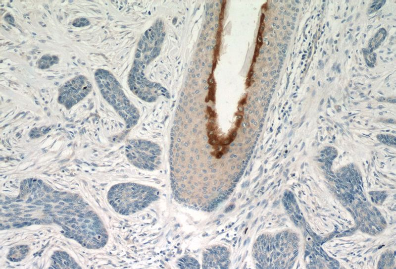 Immunohistochemistry of paraffin-embedded human skin cancer tissue slide using Catalog No:110272(PI3 Antibody) at dilution of 1:50 (under 10x lens)
