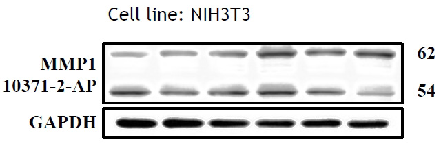 WB results of MMP1 antibody (Catalog No:, 1:500) with NIH3T3 cells, 62 kDa for pro-MMP1 and 54 kDa for Active MMP1. Data from Dr. Hui-Wen Chiu, Taipei Medical University.