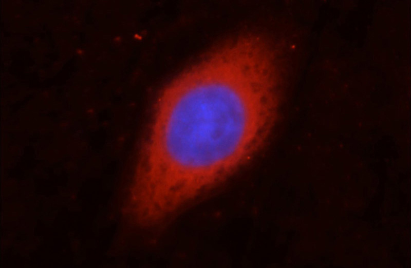 Immunofluorescent analysis of HepG2 cells, using GAPDH antibody Catalog No:117317 at 1:50 dilution and Rhodamine-labeled goat anti-rabbit IgG (red). Blue pseudocolor = DAPI (fluorescent DNA dye).