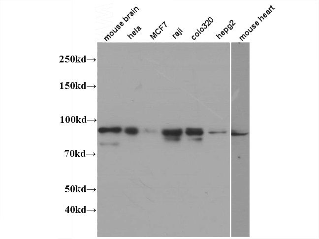 WB result of Catalog No:112662(IMMT antibody) at dliution of 1:1000.