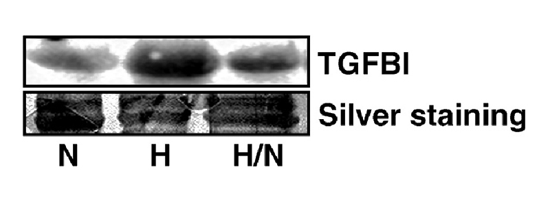 WB detection of anti-TGFBI in the extracellularmedia of LEC grown for 24 h under normoxia (N), hypoxia (H) or hypoxia and reoxygenation (H/N) for 6 h. One result representative of at least three different experiments is shown. Silver staining of the membranes was used as loading control. (From PMID:18560760; Irigoyen M, et al, TGFbeta-induced protein mediates lymphatic endothelial cell adhesion to the extracellular matrix under low oxygen conditions, Cell Mol Life Sci. 65(14), 2244-55, 2008)