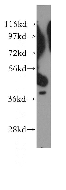 NIH/3T3 cells were subjected to SDS PAGE followed by western blot with Catalog No:110196(EIF3H antibody) at dilution of 1:500