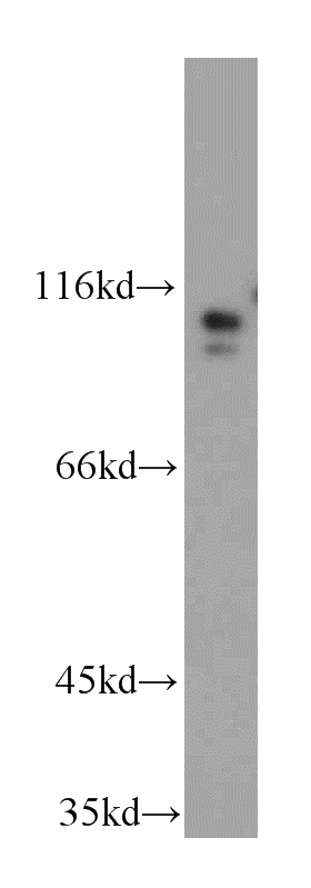 HEK-293 cells were subjected to SDS PAGE followed by western blot with Catalog No:116607(USP33 antibody) at dilution of 1:300
