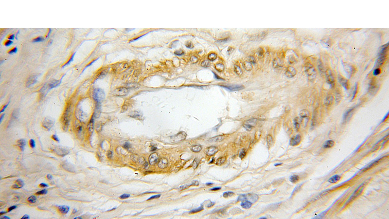 Immunohistochemical of paraffin-embedded human colon cancer using Catalog No:109716(CST7 antibody) at dilution of 1:50 (under 10x lens)
