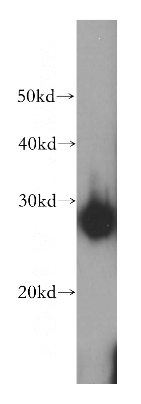 HeLa cells were subjected to SDS PAGE followed by western blot with Catalog No:111565(HSPB1 antibody) at dilution of 1:500