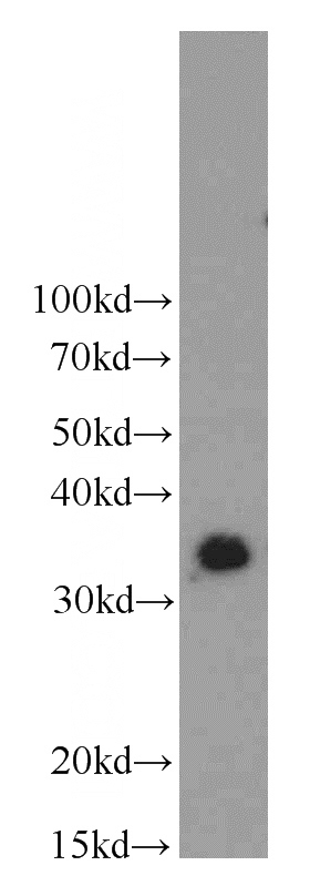 Y79 cells were subjected to SDS PAGE followed by western blot with Catalog No:112503(MBD3 antibody) at dilution of 1:600