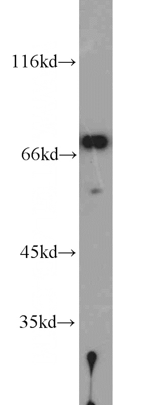 mouse testis tissue were subjected to SDS PAGE followed by western blot with Catalog No:113474(PABPC1,PABP antibody) at dilution of 1:1000
