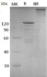 Mouse Cdh3/Cdhp (Fc tag) recombinant protein
