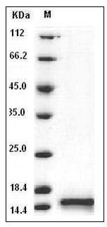 Human Cystatin B / CSTB Protein (His Tag) SDS-PAGE