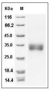 Rat Sclerostin / SOST Protein (His Tag) SDS-PAGE