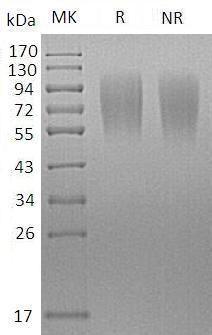 Mouse Lamp1/Lamp-1 (His tag) recombinant protein
