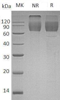Mouse Cd86 (Fc tag) recombinant protein
