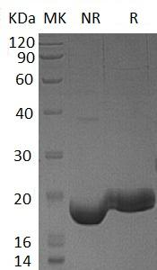 Human IFNL3/IL28B/IL28C/ZCYTO22 (His tag) recombinant protein