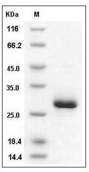 Mouse Ephrin-A5/EFNA5 (His Tag) recombinant protein