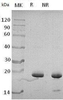 Human PIN4 (His tag) recombinant protein