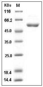 Human CDC2 Kinase / CDK1 (GST Tag) recombinant protein
