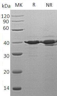 Human TSTA3/SDR4E1 (His tag) recombinant protein