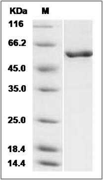 Mouse CaM Kinase 4/CaMKIV recombinant protein