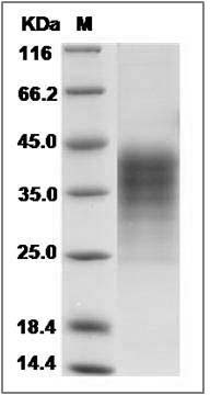 Human LIF Protein (His Tag) SDS-PAGE