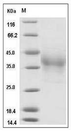 Human PD1/PDCD1/CD279 (His Tag) recombinant protein