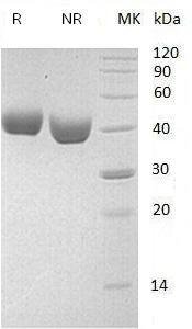 Mouse Nectin2/Mph/Pvr/Pvrl2/Pvs (His tag) recombinant protein