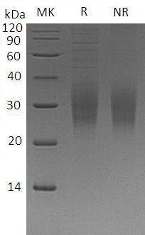 Human TREM2 (His tag) recombinant protein