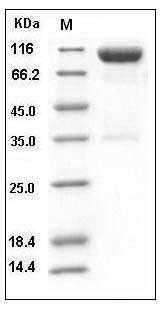 Mouse Axl Kinase (His & Fc Tag) recombinant protein
