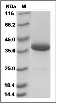 Human SCGB3A1/PnSP-2 (Fc Tag) recombinant protein