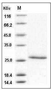 Human CD4 (aa 1-208, His Tag) recombinant protein
