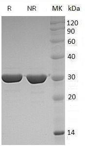 Human FGF8/AIGF (His tag) recombinant protein