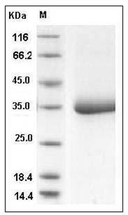 Human SHH / Sonic hedgehog (aa 198-462, His Tag) recombinant protein