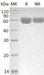 Human TNFRSF11B/OCIF/OPG (His tag) recombinant protein