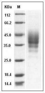 Mouse CD2 (His Tag) recombinant protein