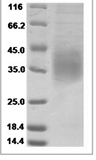 Mouse CD47 recombinant protein (C-His)