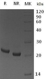 Mouse Lcn2 (His tag) recombinant protein
