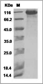 Mouse MDGA2 (His Tag) recombinant protein