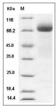 Human ADAM15 Protein (His Tag) SDS-PAGE