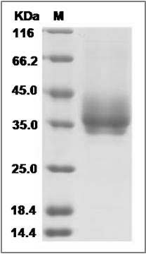 Rat B7-DC/PD-L2/CD273 (His Tag) recombinant protein