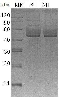 Human SDC1/SDC (His tag) recombinant protein