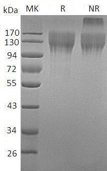 Mouse Cd96 (His tag) recombinant protein