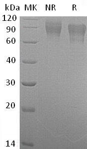 Human F9 (His tag) recombinant protein